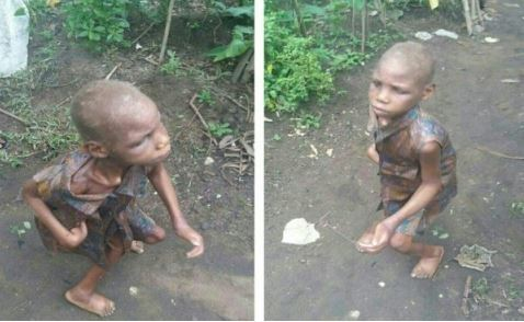OMG: 11-Year-Old Girl Dumped By Mother Because She Is Blind And Crippled (See Photo)
