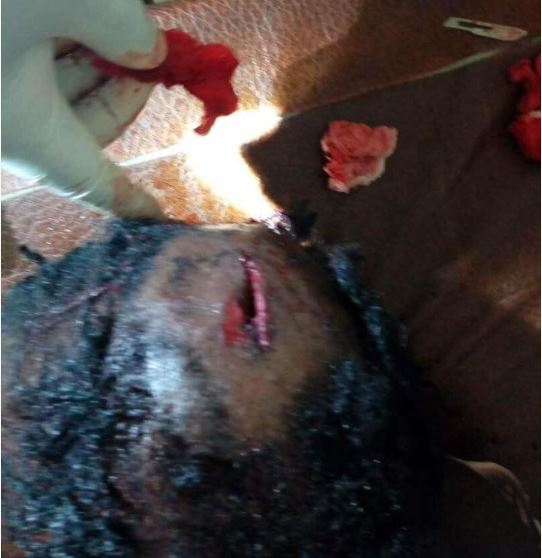A lady was hit by a stray bullet during a gun battle between policemen and armed robbers in Sapele area of Delta state