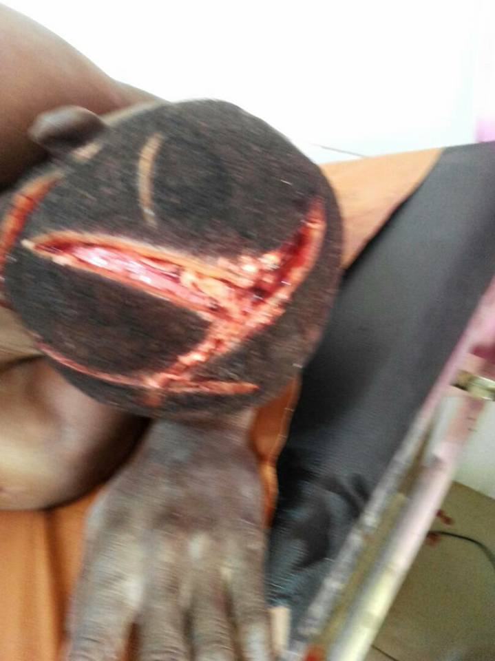 New Look Of Farmer Whose Head Was Butchered By Fulani Herdsmen. Photos