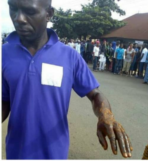 Ekiti election party agent was attacked with acid