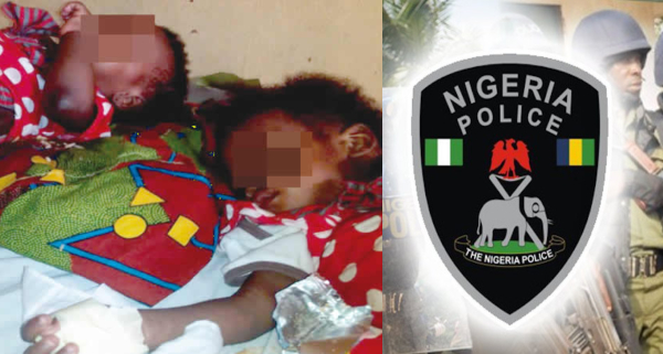 1-Year-old Twin's Body Part Cut Off In Lagos Hospital