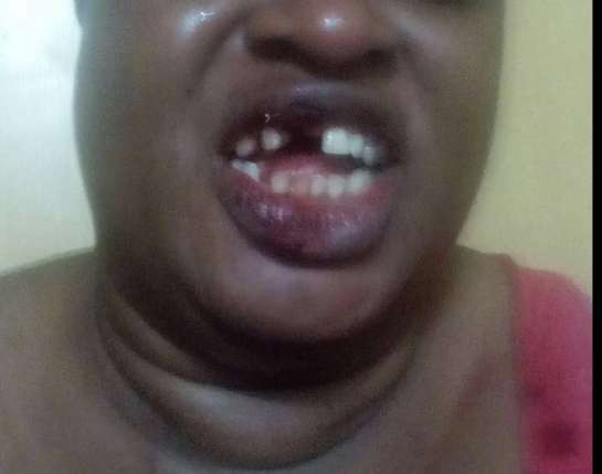 Woman Teeth Removed Man Knocks Off Lagos Sex Worker's Teeth For Closing Up During Sex (Graphic)