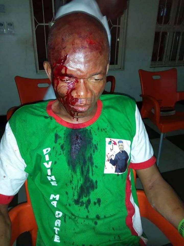 obot-essien-pdp-chairman-attacked-in-akwa-ibom-his-head-broken-over-zoning-1-1