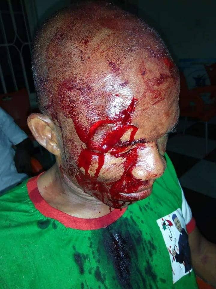 Youths Attack PDP Chairman In Akwa Ibom, Break His Head Over Zoning (Photos)