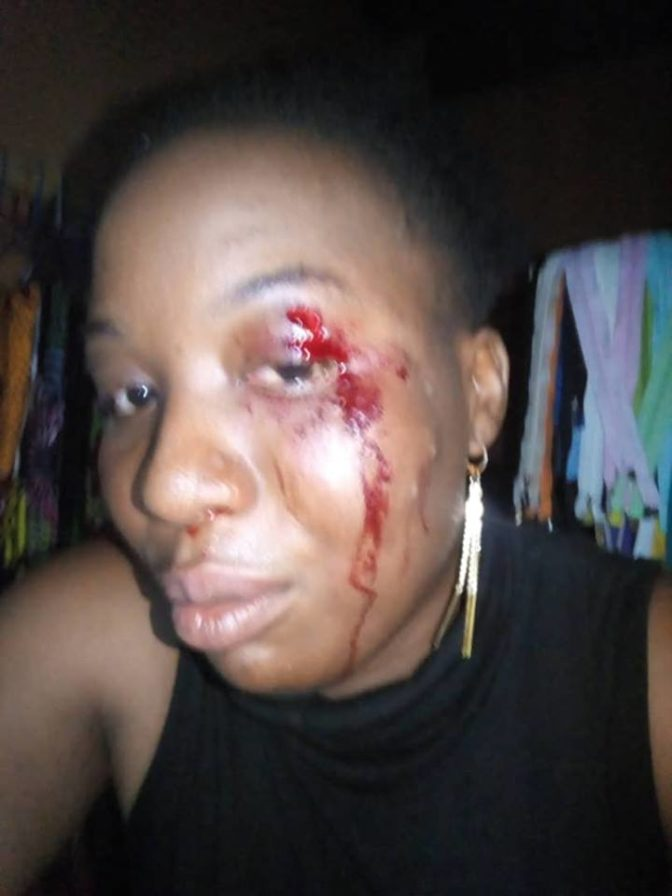 Woman brutalized by army Woman Cries Out After She Was Allegedly Assaulted By Soldier In Abuja (Photo)