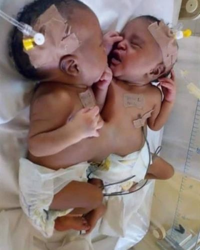separate twins Doctors Separate Conjoined Twins